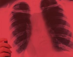 Mesothelioma_asbestos-risk