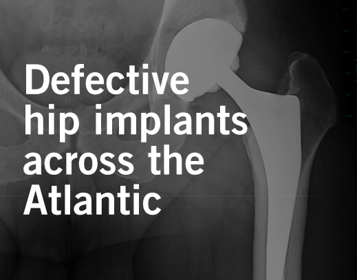 Metal-on-Metal Hip Implant